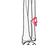 forearm shaft