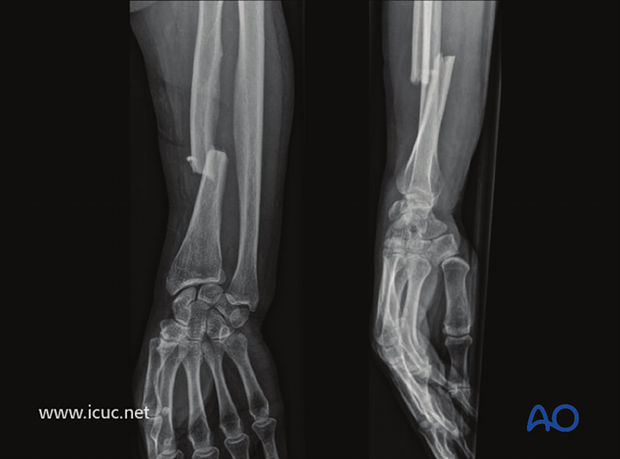Unreduced Galeazzi fracture in a 60-year-old woman
