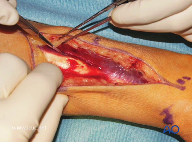 An interval is found between extensor tendons trying to avoid devascularization with careful dissection.