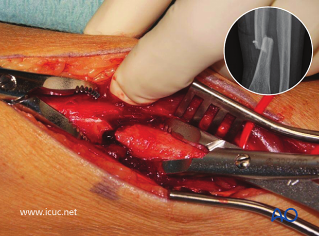 The fracture of the radius is found beneath the extensor tendons and reduced with two bone clamps. Once the fracture is perfectly reduced, the distal radial ulnar joint should also be reduced.