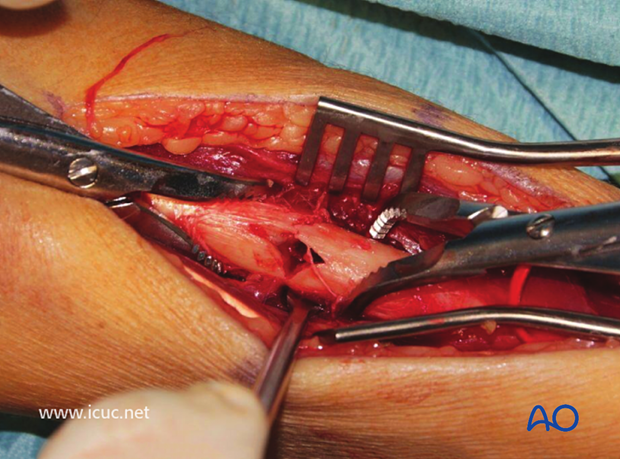 Slight comminution is present in this fracture, but it should still be anatomically reduced. Small devitalized bone fragments should be removed. Compression of this fracture should still be attempted.