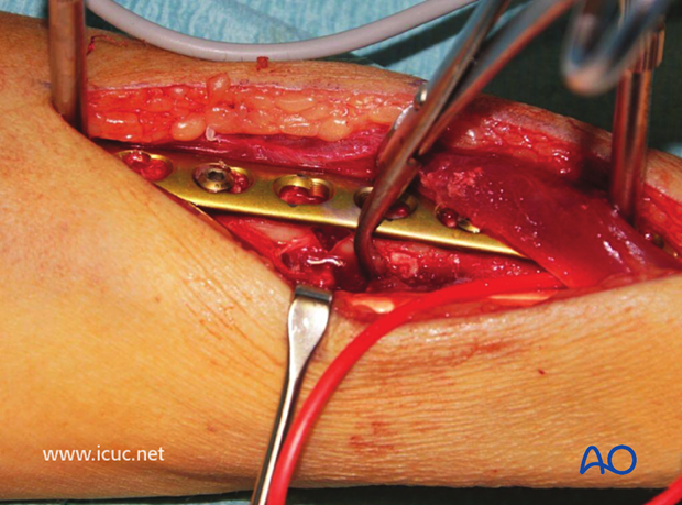 Near perfect reduction of the radial fracture with compression.