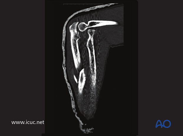 CT of elbow demonstrating anterior radial head dislocation.