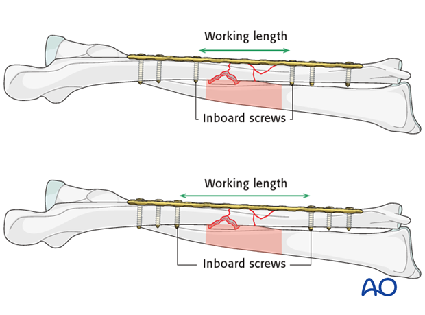 Working length considerations