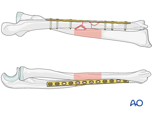 Assessment of overall forearm reduction