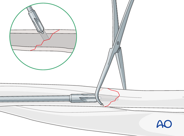 Fixation – lag screw as primary fixation device separate from plate