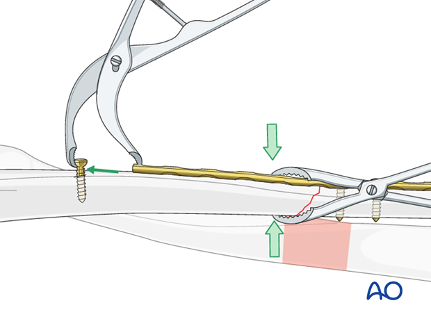 Axial compression with a small Verbrugge clamp
