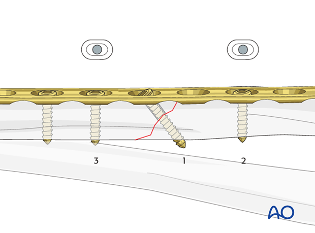 Fixation – lag screw as primary fixation device through the plate