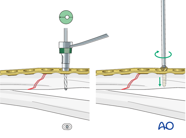 Fixation – compression plating with an additional lag screw