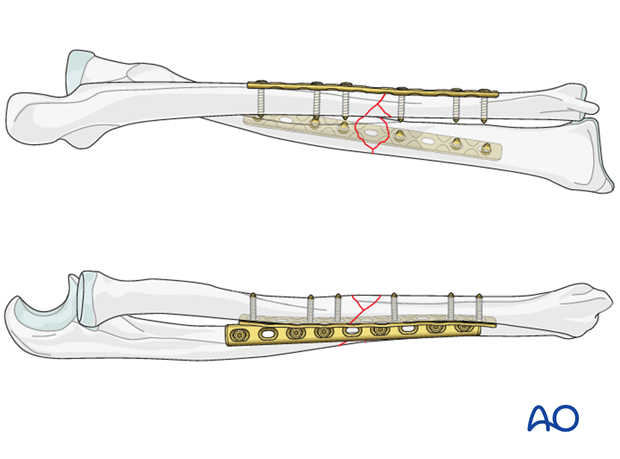 wedge fracture of one bone with a simple or wedge fracture of the other