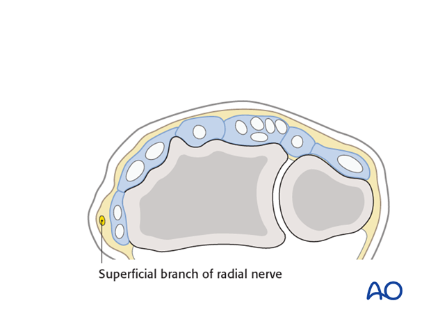 direct approach to the radial styloid