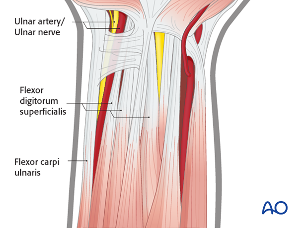 ulnar palmar approach to the distal radius