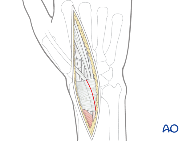 dorsal approach for joint spanning plate