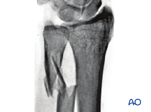 Multifragmentary ulnar metaphyseal fracture view