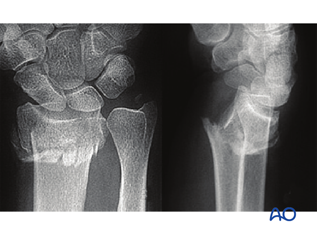 wedge or multifragmentary fracture X-rays