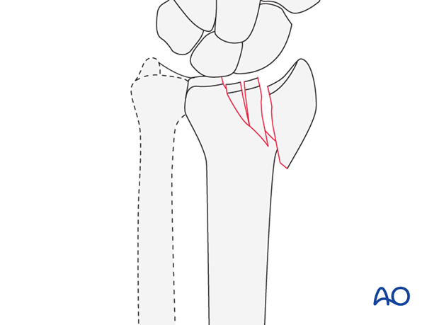 Sagittal multifragmentary fracture involving the scaphoid fossa