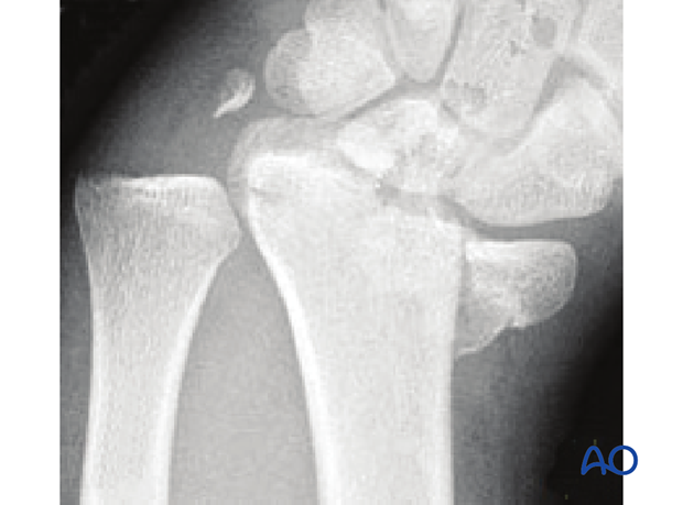 Sagittal multifragmentary fracture involving the scaphoid fossa X-rays