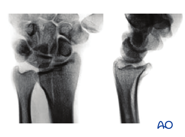 Sagittal fracture involving the lunate fossa X-rays