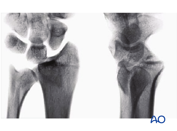 Partial articular, fragmentary fracture of the radius, involving the dorsal rim (Barton's) x-rays