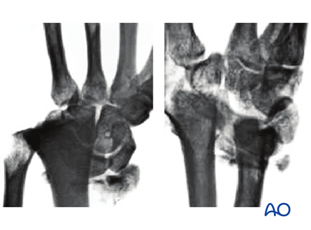 Partial articular fracture of the radius with dorsal dislocation x-rays