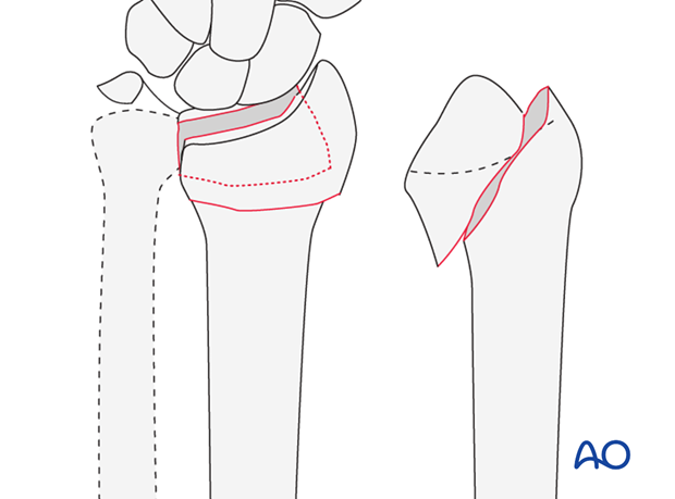 Partial articular simple fracture of the radius, involving the volar rim (reverse Barton's, Goyrand-Smith II)