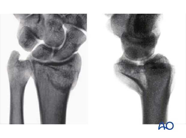 Partial articular simple fracture of the radius, involving the volar rim (reverse Barton's, Goyrand-Smith II) x-rays
