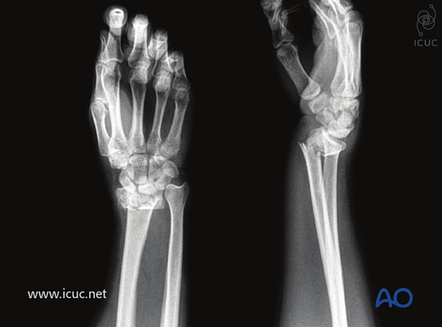 Fragmentary intraarticular displaced distal radial fracture