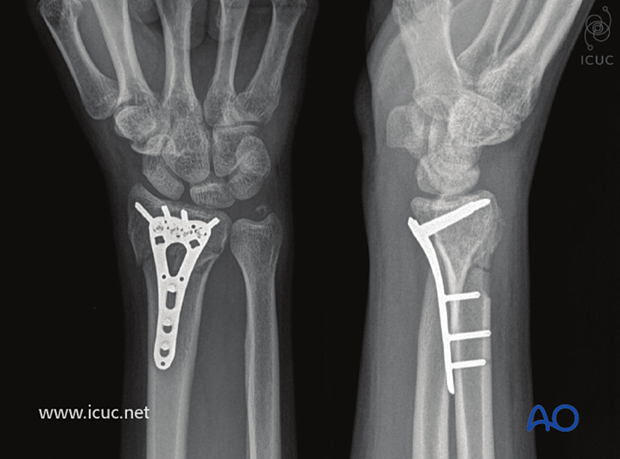 Four-week images of healing fracture