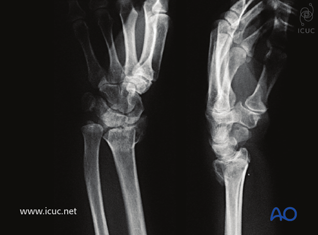 Displaced, intraarticular distal radial fracture