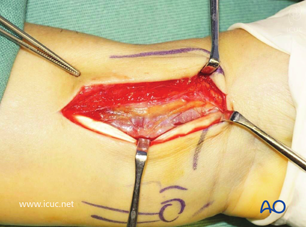 Flexor carpi radialis tendon is retracted towards the ulna and the incision is continued through the volar tendon sheath