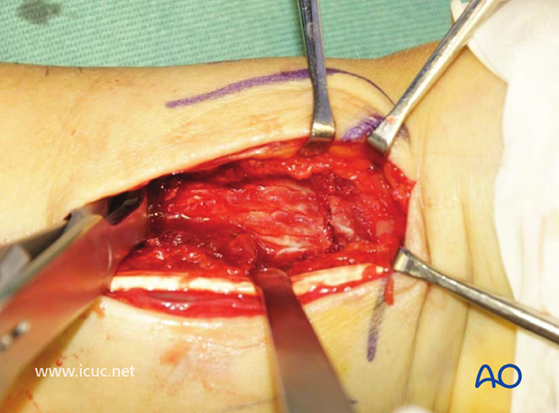 The distal radial fracture is demonstrated and reduced