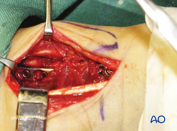Pronator quadratus is used to cover the plate during closure