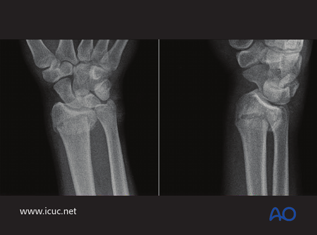 Extra articular distal radial fracture in a 20-year-old, with dorsal displacement