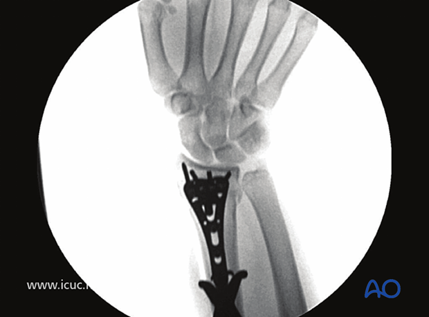 Fluoroscopic image demonstrating all distal screws are extraarticular