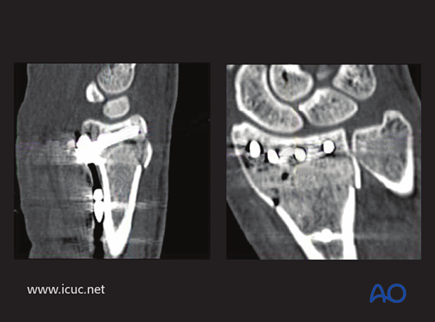 Postoperative CT showing extraarticular position of variable angle screws