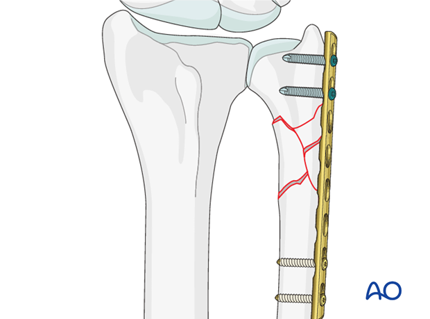 extraarticular multifragmentary fracture of the ulna