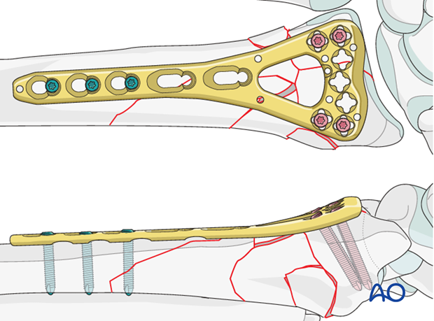 complete simple articular fragmented metaphysis radial fracture