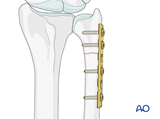extraarticular simple fracture of the ulna