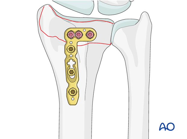 partial articular simple fracture of the radius involving the dorsal rim