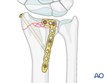 partial articular fracture of the radius with dorsal dislocation