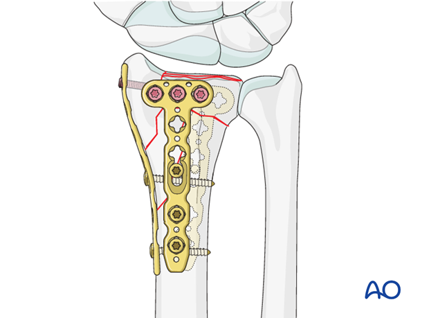 complete multifragmentary fracture of the radius