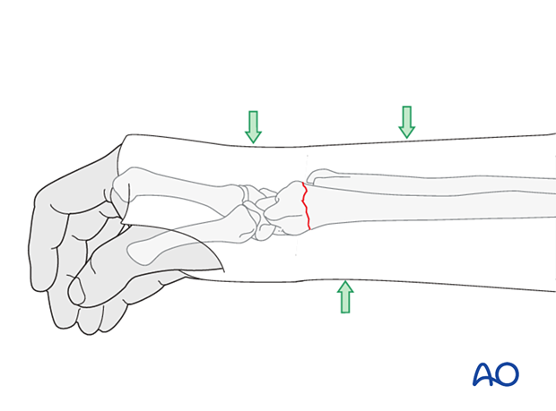 This is normally achieved by applying three-point fixation in the directions specific for that fracture pattern.