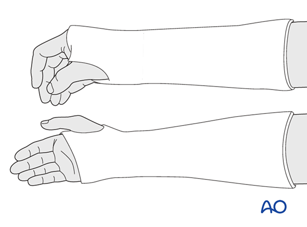 The wrist should be in neutral axial alignment or slight volar angulation.