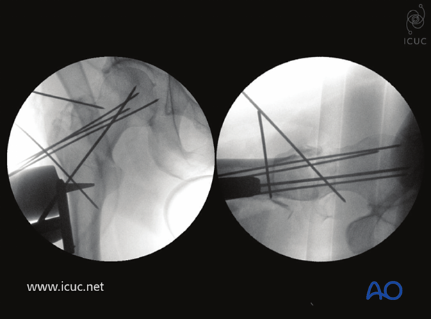 Carefully reconstruction with K-wires holding multiple fragments reduced, and with a DHS guide wire placed centrally in the femoral head in both views