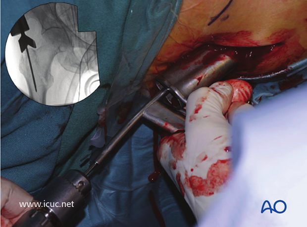 This image shows a percutaneous insertion of the guide wire into the tip of the greater trochanter