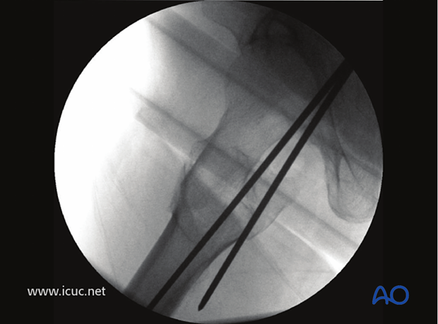 This image shows the first guide wire (posterior) was placed too far posterior in an inappropriate position