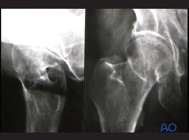 femoral neck fracture subcapital undisplaced or impacted