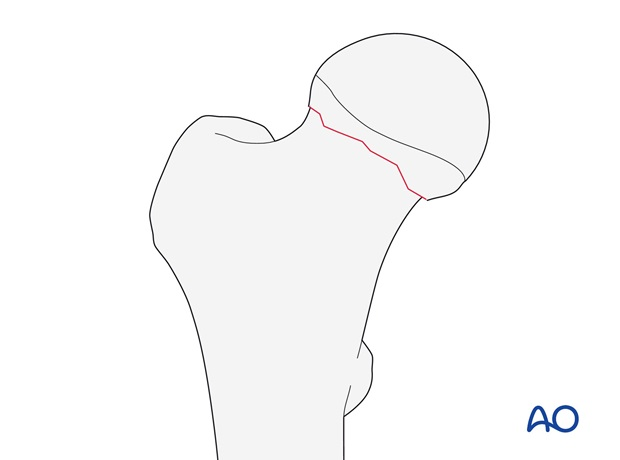 Femoral neck fracture, subcapital, undisplaced or impacted