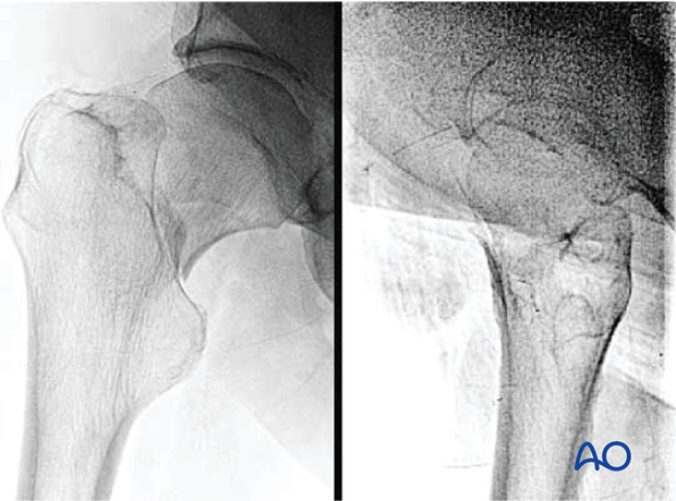Femoral neck fracture, transcervical or basicervical