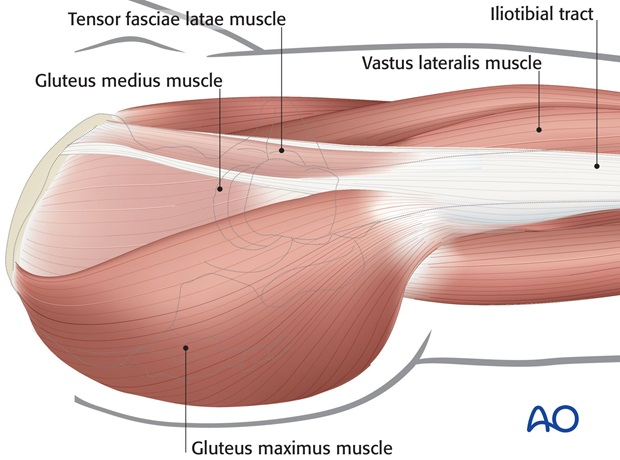 lateral approach for closed reduction and fixation
